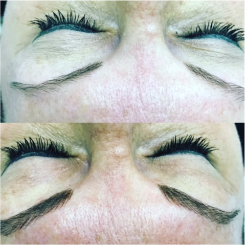 Can you explain microblading?
