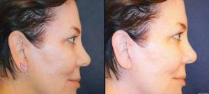 bellissimo offers earlobe reduction surgery in pittsburgh, pa