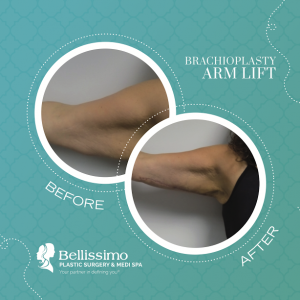 arm lift or brachioplasty - spring plastic surgery trends