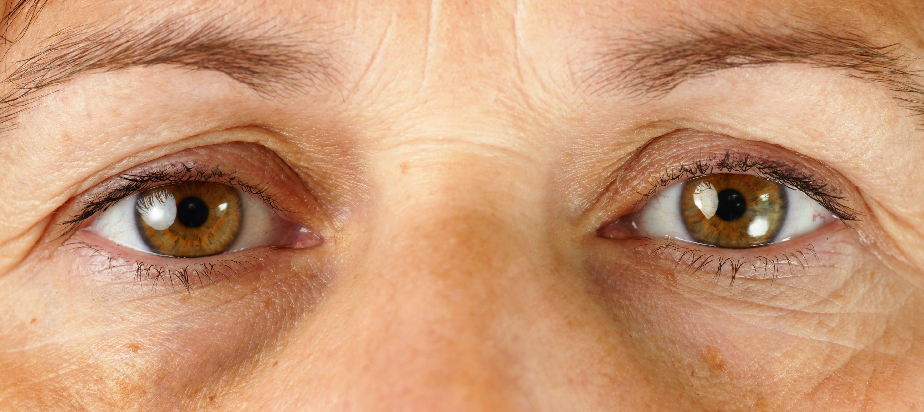 The Eyes Have It: Surgical vs. Non-Surgical Correction