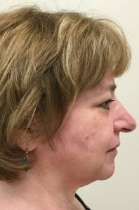 Profile of Bellissimo Patient Before Face Work