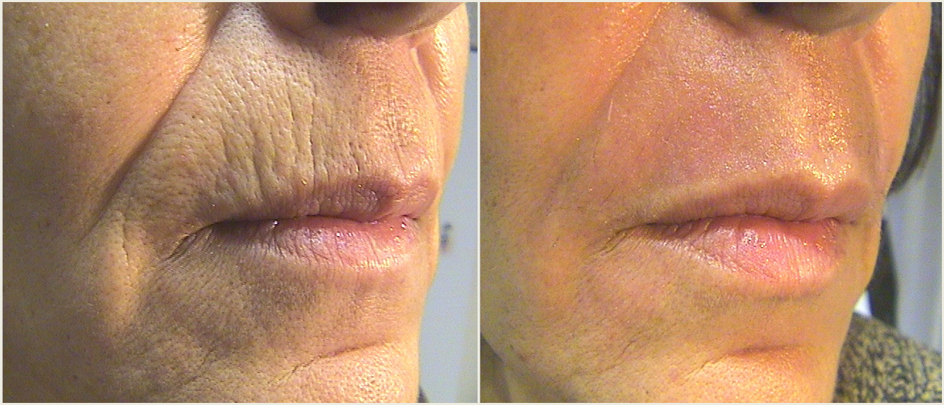 September Procedure of the Month: Tetra CO2 Laser